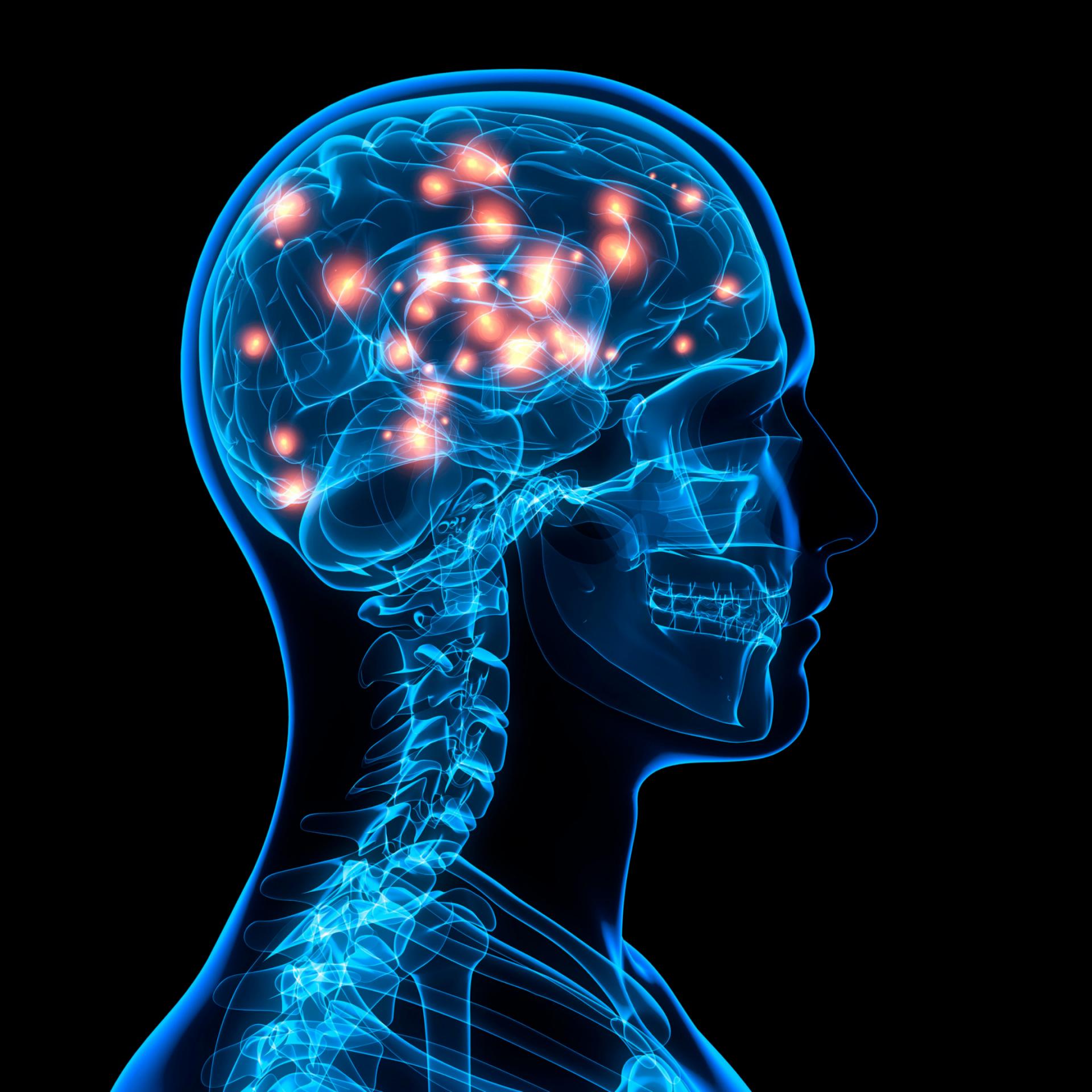 Como ocorre a neuroplasticidade pós-AVC