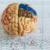 Entenda como epilepsia e distúrbios do movimento podem estar relacionados